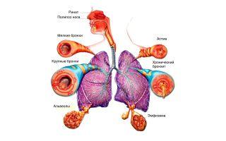 ХОБЛ и бронхиальная астма: общее и отличия, дифференциальная диагностика