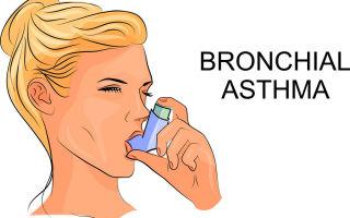 Степени тяжести, течение и лечение персистирующей формы бронхиальной астмы