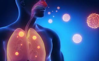 Инфекционная бронхиальная астма: причины, клиническая картина, лечение