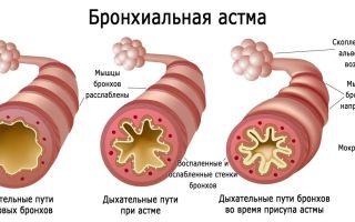 Как жить с бронхиальной астмой: контроль, лечение, образ жизни, прогноз