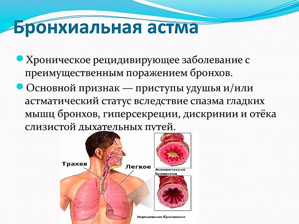 Что такое астма