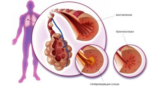 схема астмы
