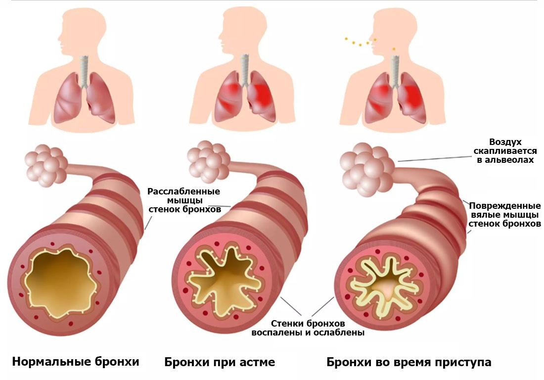 Описание астмы