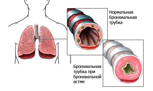 Нарушение при астме