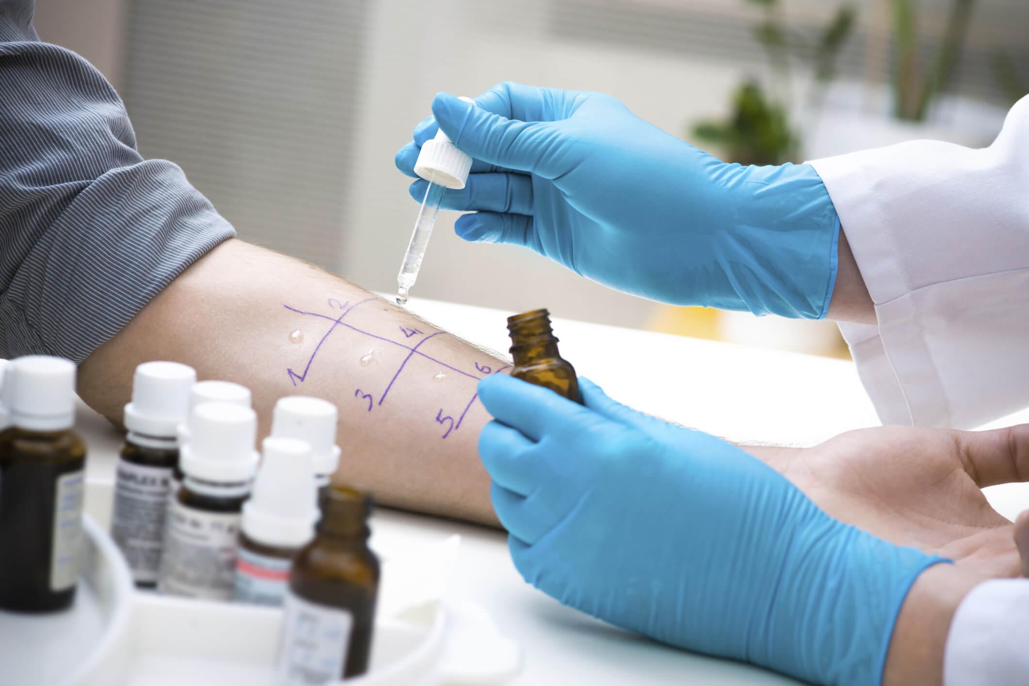 Аллергопробы