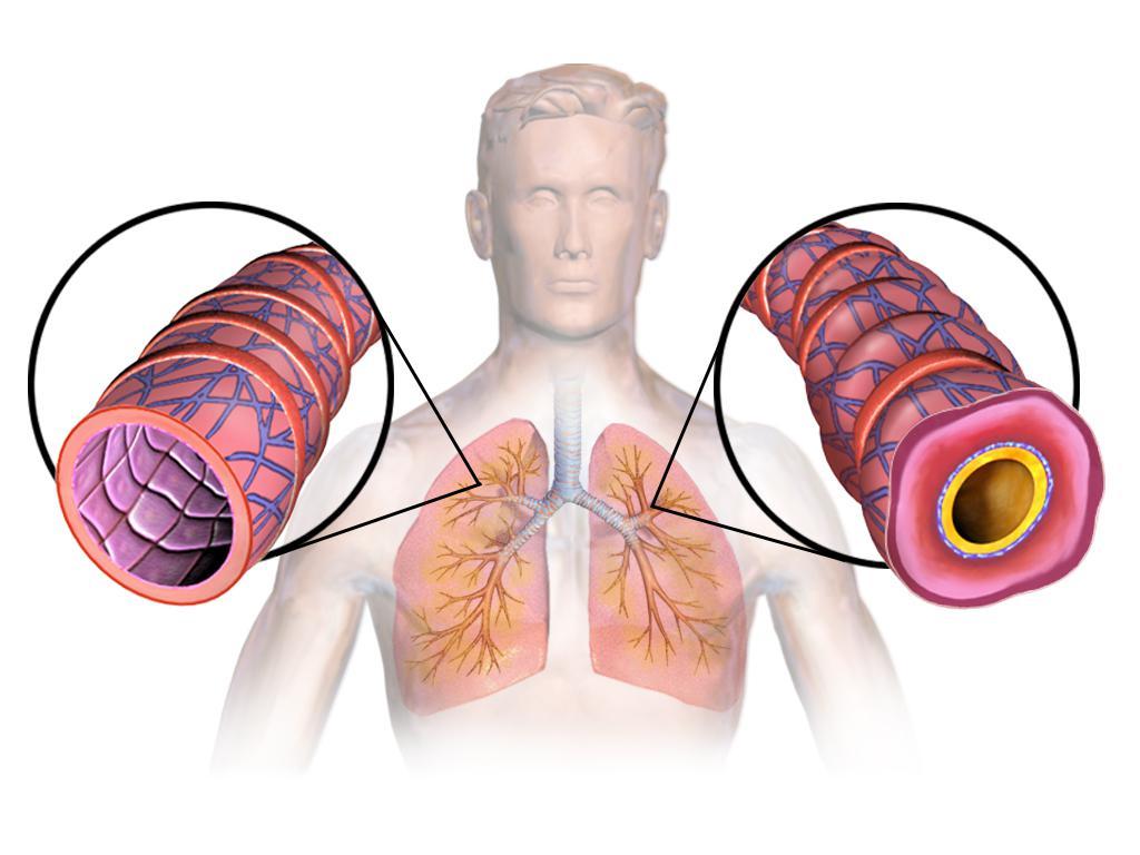 Аллергическую форму бронхиальной астмы характеризуют thumbnail
