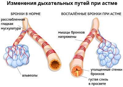 Описание бронхиальной астмы