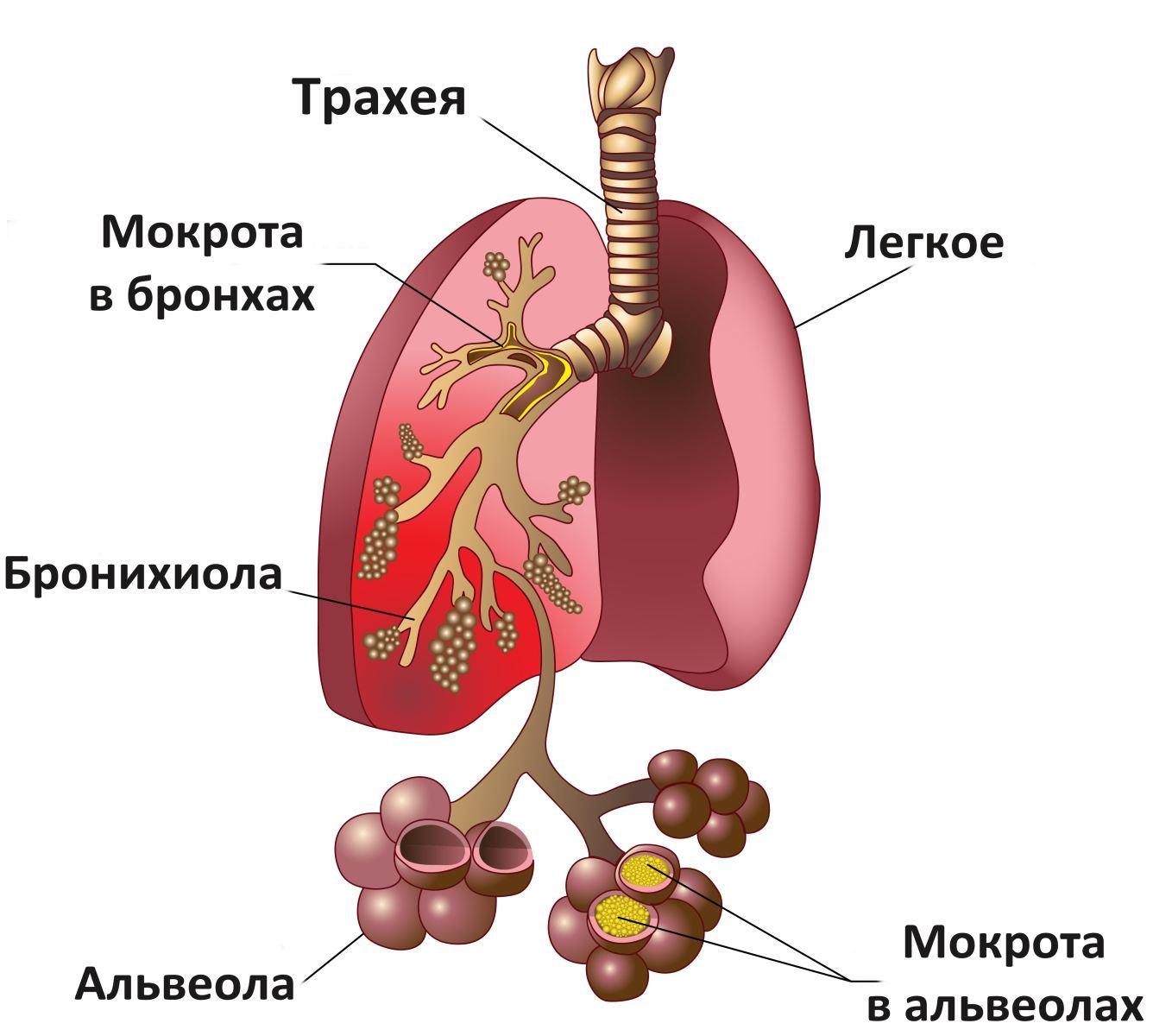 Как бронхит перерастает в астму thumbnail