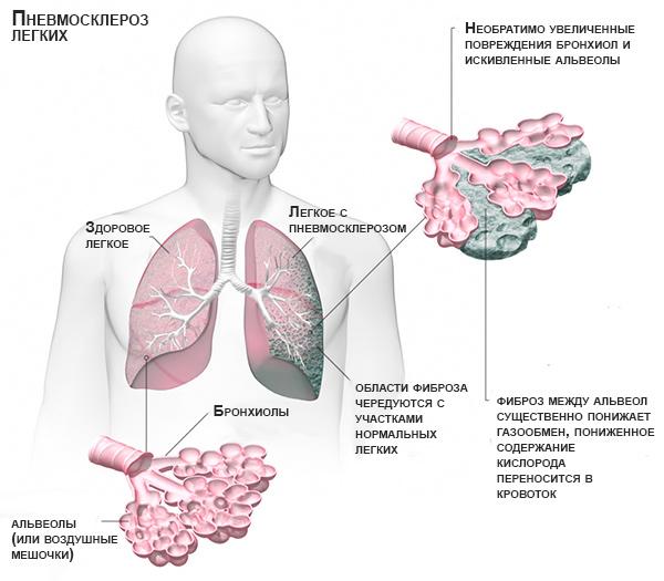 пневмосклероз легких схема