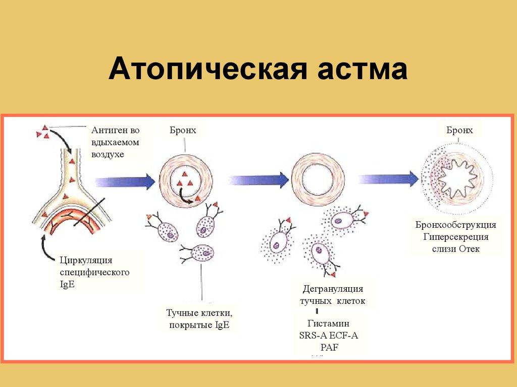 Механизм развития атопической БА