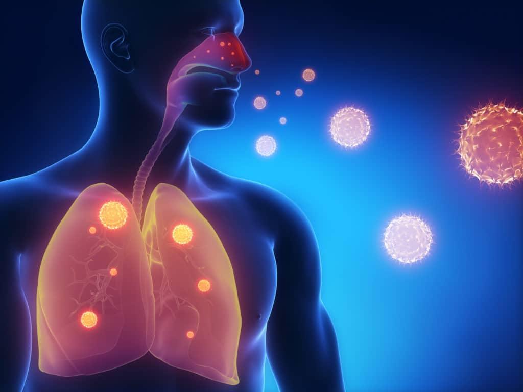 Инфекционная астма