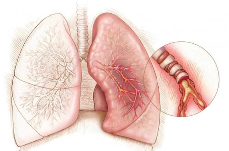 Легкие, астма