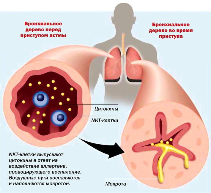 Купирование бронхоспазма при бронхиальной астме thumbnail