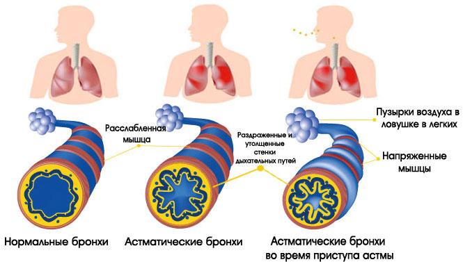физиология астмы во время приступа
