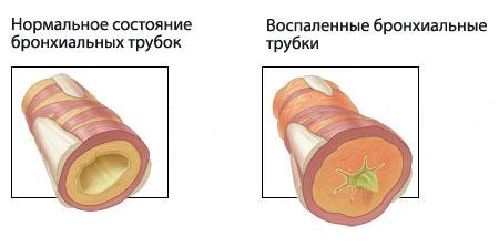 здоровые бронхи и бронхи при астме