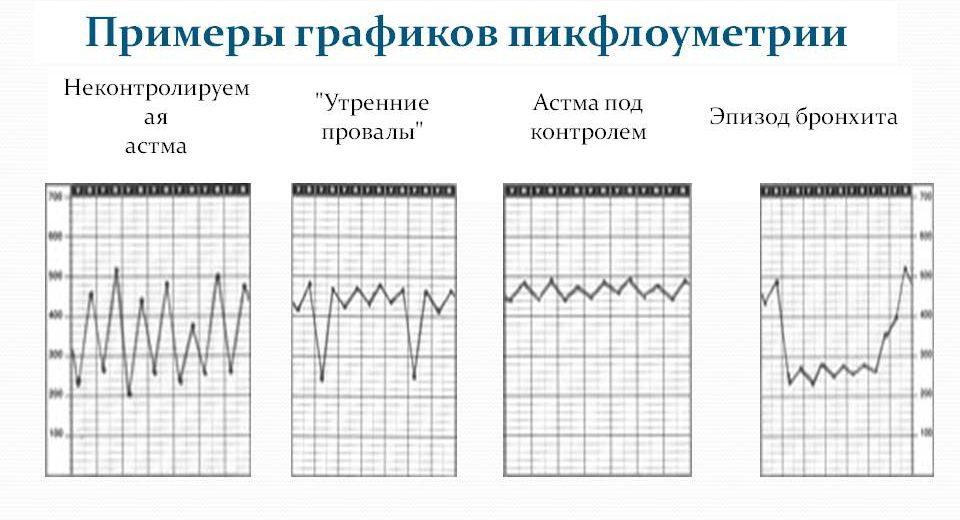 графики пикфлоуметрии